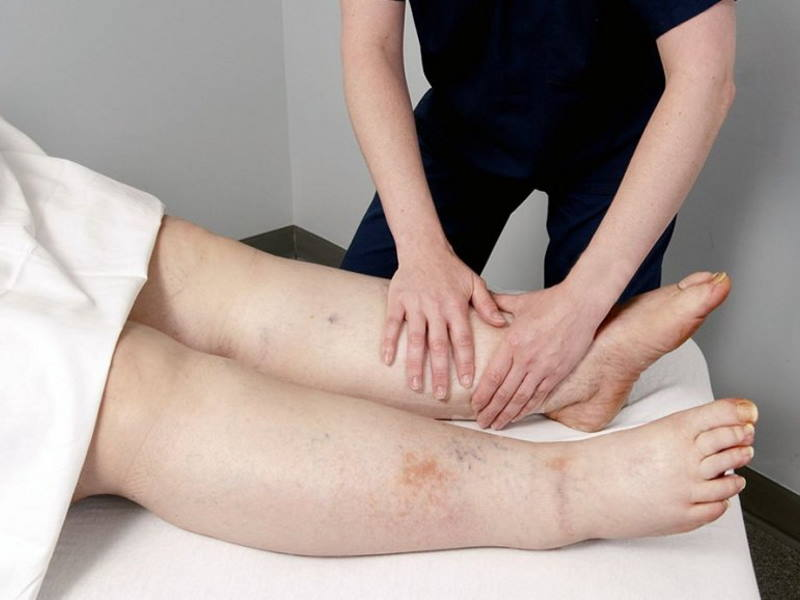 Avril Lunken Lymphoedema treatment